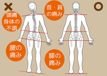 接骨院よこやま骨盤矯正背骨歪みの図