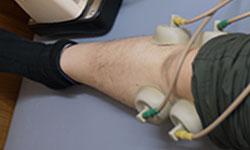 膝の治療 豊田市接骨院よこやま低周波治療器