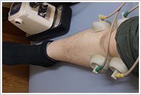 接骨院よこやま膝の低周波治療