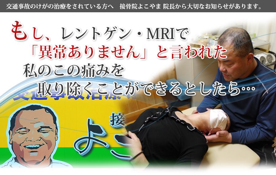 豊田で交通事故治療なら接骨院よこやまへ